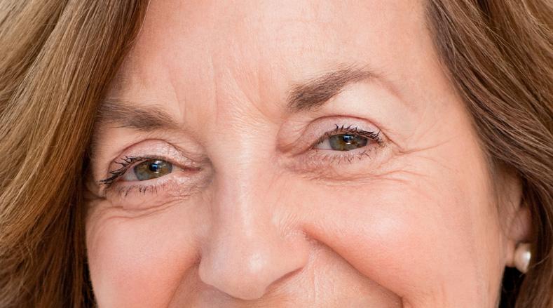 Bolsas en los ojos: enemigas de la belleza
